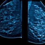 What You Really Need to Know About Dense Breasts
