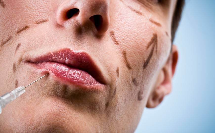 Plastic Surgery Makes You More Likeable