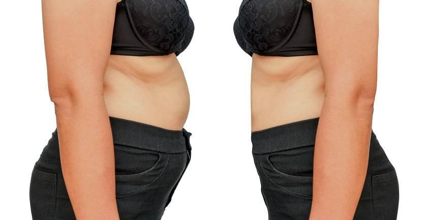 Liposuction and Body Mass Index